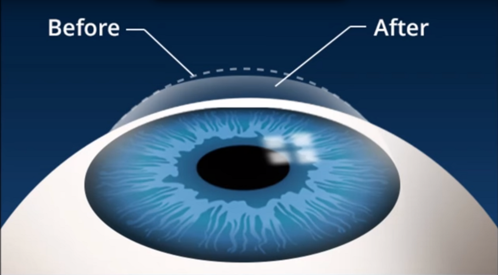 5 DIFFERENT CORRECTIVE EYE SURGERY TYPES