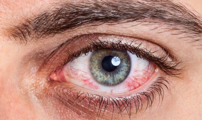 المشكلة والعلاج تعرف على اعراض حساسية العين وأسبابها مستشفيات مغربي