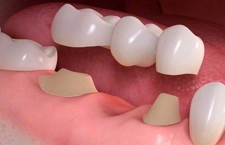 تركيبات الاسنان .. (أنواعها وطرق العناية بها)