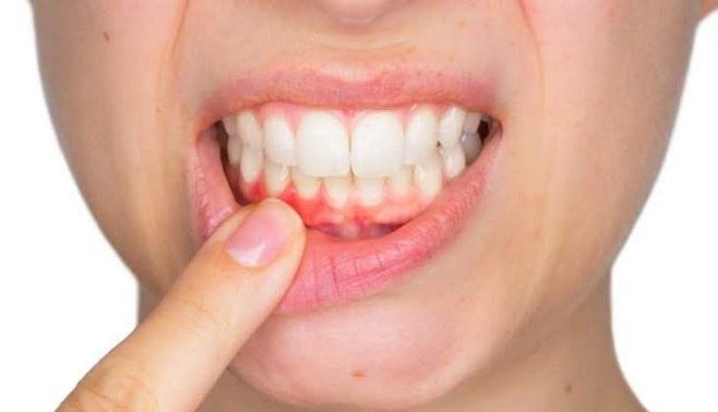 ما هي طرق علاج التهاب الفم وما هي أنواعه؟