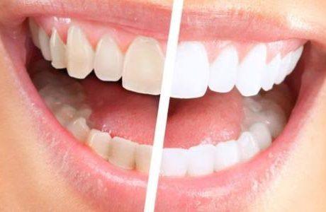 تعرف على أهمية تنظيف الاسنان من الجير
