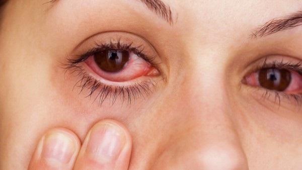 طرق علاج التهاب العين وطرق الوقاية