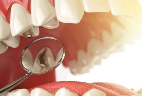 تعرف على طرق علاج تسوس الاسنان