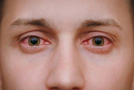 تعرف على اسباب احمرار العين وطرق العلاج