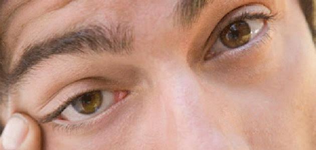 ما هي رفة العين وطرق العلاج الصحيحة؟