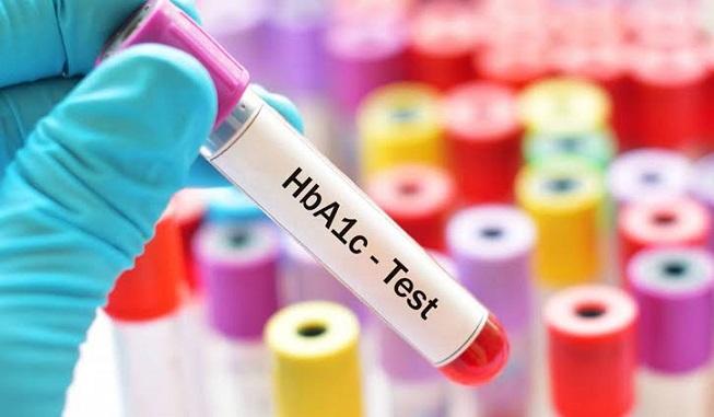 كل ما تريد أن تعرفه عن تحليل HbA1c