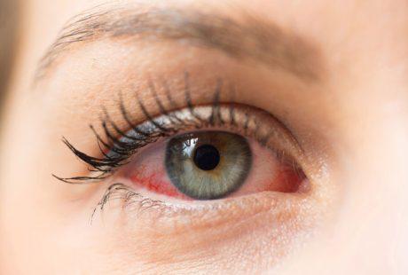 احمرار العين: 13 سبب للإصابة به وطرق علاجهم!