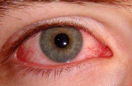 نزيف العين (الأسباب والأعراض وطرق الوقاية والعلاج)