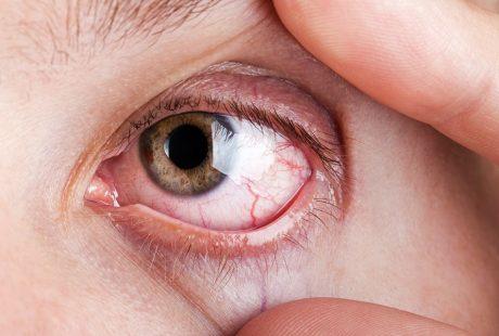 الأسباب والأعراض | 5 أسباب ل حرقان العين