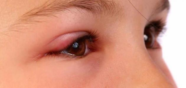 انتفاخ تحت العين عند الاطفال