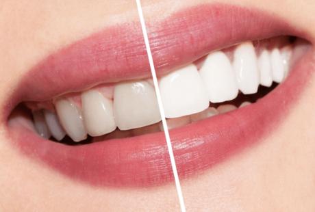 5 مزايا لتبييض الاسنان بالليزر