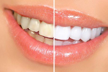 تعرف على الفرق بين جير الاسنان وطبقة البلاك