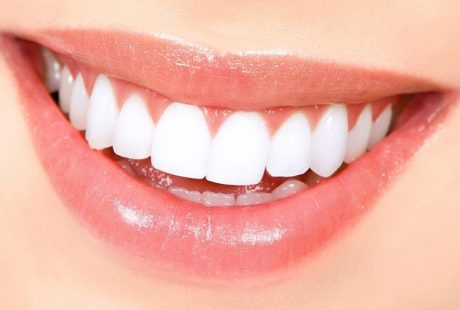 كل ما تريد أن تعرفه عن فينير الاسنان