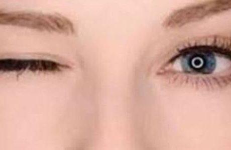 الأسباب والعلاج .. كل ما تريد أن تعرفه عن رعشة العين