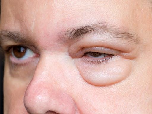 تعرف على أسباب وأعراض وطرق علاج تورم العين مستشفيات مغربي