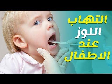 طرق علاج اللوز عند الاطفال والاسباب والاعراض مستشفيات مغربي