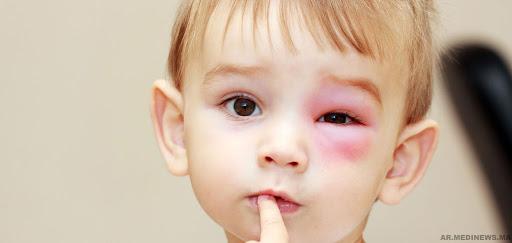 انتفاخ العين عند الاطفال