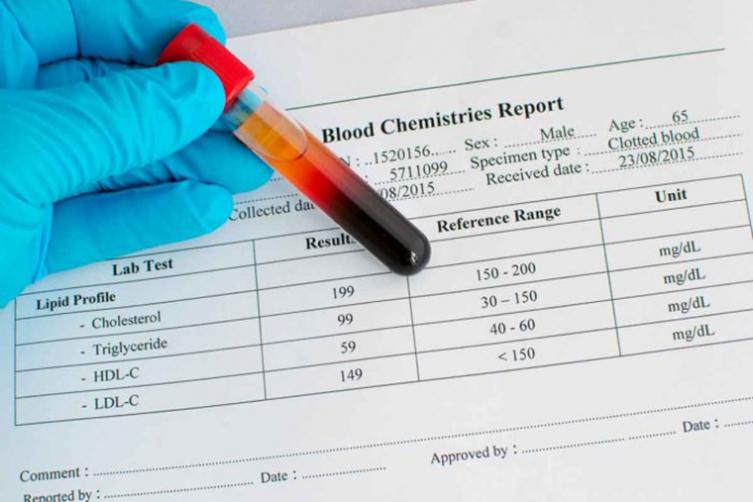 كيفية قراءة تحليل الدم الشامل وأهم النتائج له مستشفيات مغربي