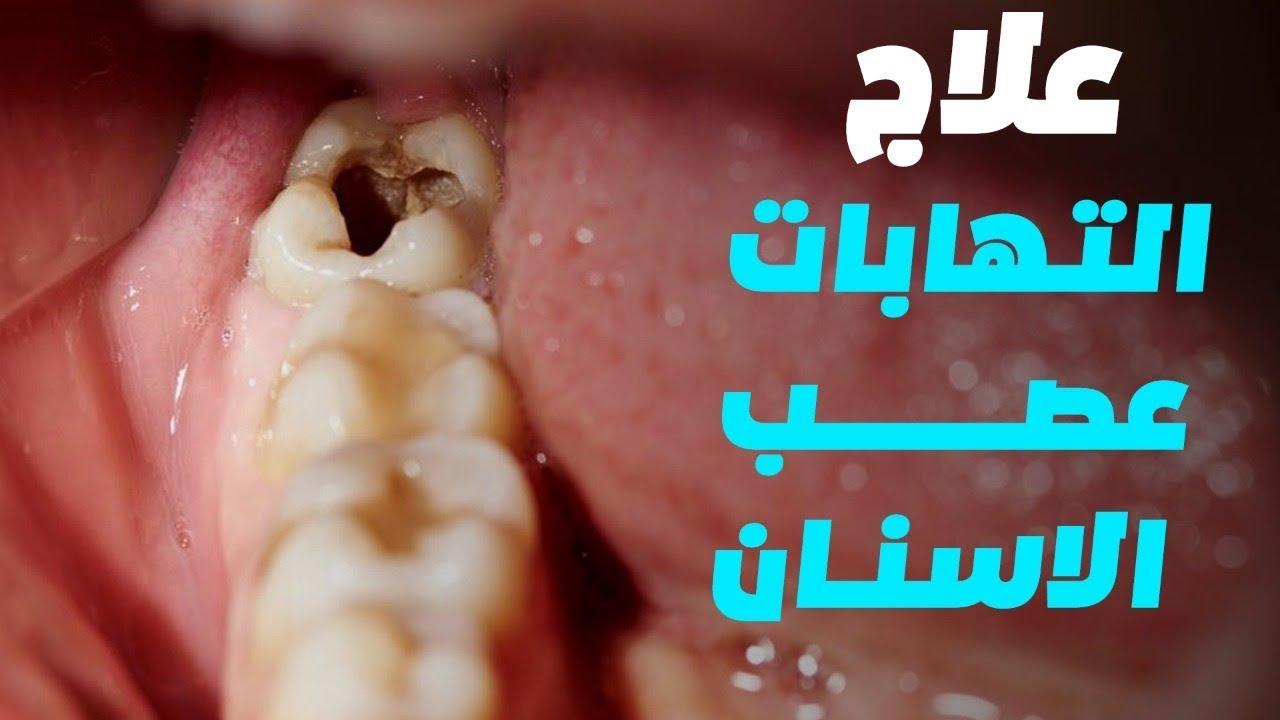 الم عصب الاسنان اعراضه وأسبابه وخطوات علاجه